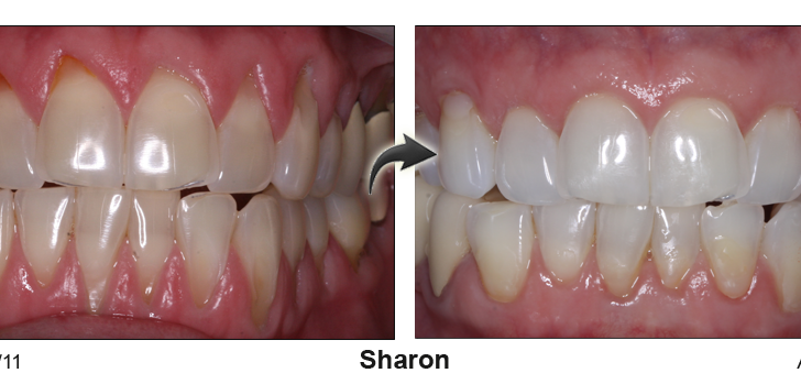 Gum recession treatment Richmond before and after photos.